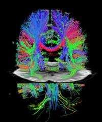 Advance speeds up MRI scans