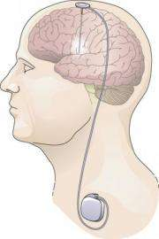 Deep brain stimulation at two different targets gives similar motor benefits in Parkinson's