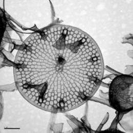 Reviving 100-year-old resting spores of diatoms