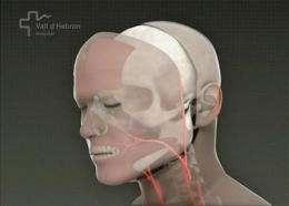 Spanish hospital claims 1st full-face transplant (AP)
