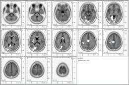 Transcendental Meditation activates default mode network, the brain's natural ground state