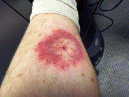 Emerging tick-borne disease