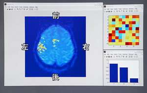 ATR, Honda Develop New Brain-Machine Interface