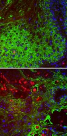 Balancing act protects vulnerable cells from cancer