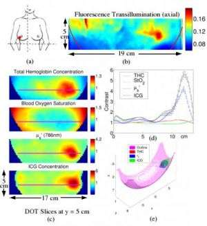 Fluorescence diffuse optical tomography provides high contrast, 3-D look at breast cancer