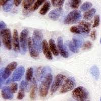 Ovarian Cancer May Mimic Fallopian Tube Formation