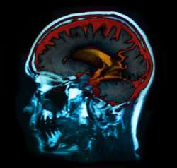 The brain can rapidly reorganise to recover from damage