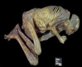 A mummy.