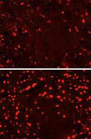 Fatty diet during pregnancy makes new cells in fetal brain that cause early onset obesity