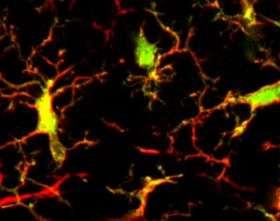 First evidence of native dendritic cells in brain