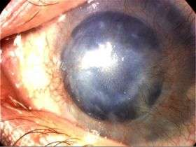 New finding in rare eye disease