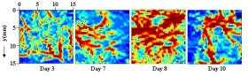 Photoacoustics useful in cancer research