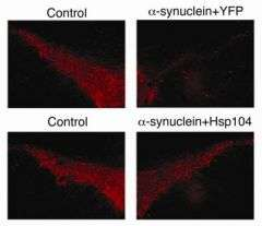 Study finds way to prevent protein clumping characteristic of Parkinson's disease