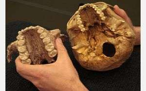 The skull of Paranthropus boisei