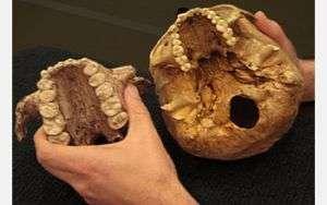 The skull of Paranthropus boisei