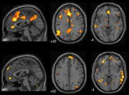 Brain's problem-solving function at work when we daydream