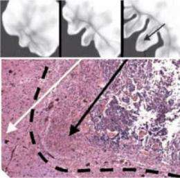 Computer model predicts brain tumor growth and evolution