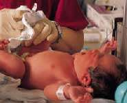 Resuscitated newborns at risk for lower IQs