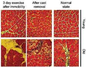 Scientists discover clues to what makes human muscle age