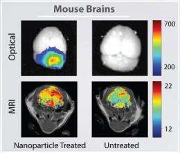 Nanoparticles cross blood-brain barrier to enable 'brain tumor painting'