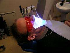 UV tooth bleaching treatment