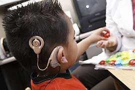 Cochlear Implants Offer Kids A Gift Beyond Hearing