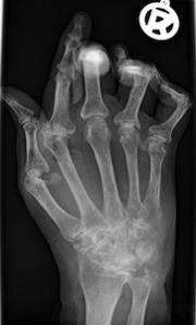 Deepening the search  for clues to rheumatoid arthritis