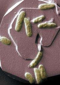 Microbe of Metal