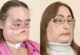 Nation's first face transplant patient shows face (AP)