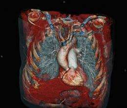 Patient research to benefit from cutting edge heart scanner