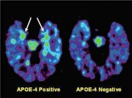 PET Scan for Brain Aging