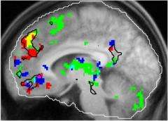Study finds brain hub that links music, memory and emotion