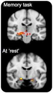 Young adults at future risk of Alzheimer's have different brain activity