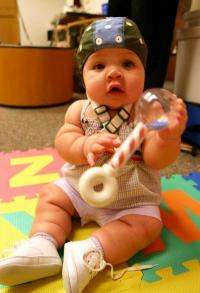Bilingual babies' vocabulary linked to early brain differentiation