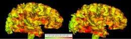 Brain enlargement in autism due to brain changes occurring before age 2