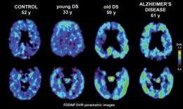 Brain scan identifies patterns of plaques and tangles in adults with Down syndrome