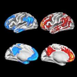 Cells talk more in areas Alzheimer's hits first, boosting plaque component