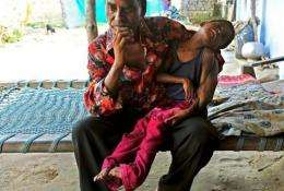 Chatua Das's 12-year-old daughter is suffering from cerebral palsy