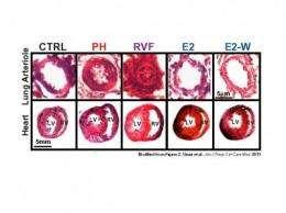Estrogen treatment may help reverse severe pulmonary hypertension