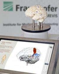 Fraunhofer MEVIS: New procedure to make brain surgery safer