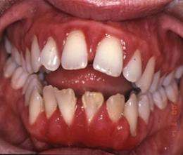 Mouth bacteria provide ideal conditions for gum disease