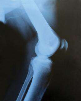 Penn scientists develop a new way to re-grow cartilage