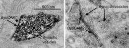 Rejuvenating electron microscopy