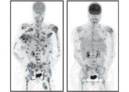 SLAC x-rays help discover new drug against melanoma