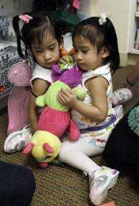 Surgeons separate California conjoined twins (AP)