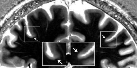 First MR images to show complete borders in human cerebral cortex