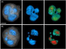 Cell-CT: A new dimension in breast cancer research