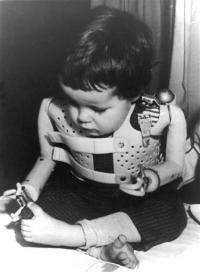 German drug firm makes 1st apology for thalidomide