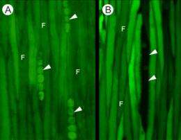 Long-distance solute transport in trees improved by intercellular pathways in living woody tissues