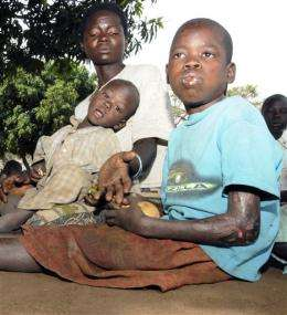 Mysterious nodding disease afflicts young Ugandans